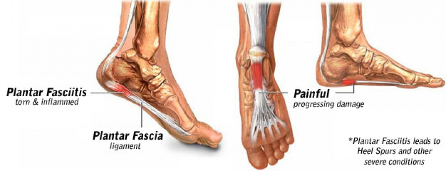 Plantar Fasciitis – Foot Pain